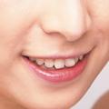 審美歯科の内容